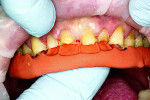 Fig 9. Putty splint in place to guide the direct composite restorations for the maxillary anterior teeth.
