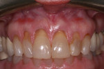 Fig 1. Pretreatment view showed gingival recession defects of teeth Nos. 7 through 10.