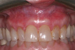 Fig 6. Reevaluation at 20 months showed the stability of the gingival contours and gingival margins.