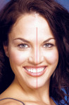 Figure 1  Image of smile where the facial and dental midline do not line up.