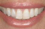 Figure 6  Image of a smile that was rated excellent by several evaluators at the UCLA Center for Esthetic Dentistry.