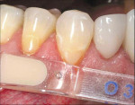 Figure 2  The Voco Amaris® composite shade guide was used to take a preoperative cervical shade of the patient's teeth.