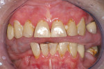 Figure 3  Xerostomia resulting from Sjögren's syndrome with rampant dental caries.