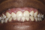 Case 1: 10-day postoperative photograph. Note poor hygiene, which may compromise results if not improved.