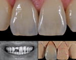 A case in which Connecticut-based ceramist Cristiana Fragoso delivered what was deemed to be a perfect restoration to Sivan Finkel, DMD, in New York on the first attempt.