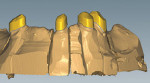 Fig 1 and Fig 2. Once a preliminary model is poured in Type IV resin reinforced gypsum, a digital scan is performed and the primary telescopic crowns are digitally designed.