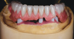 Fig 8 through Fig 10. The tooth positioning is transferred to the corrected master cast using a silicone putty matrix, and a complete wax try-in with hardware is performed.