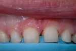Fig 6. Adequate tooth reduction was achieved and confirmed with the reduction matrix in place in the mouth.