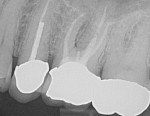 Fig 1. Preoperative radiograph demonstrating vertical root fracture of tooth No. 14.