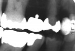 Figure 4  Preoperative radiograph shows the extent of the previous restorative treatment.