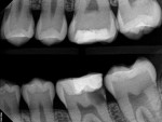 16-year-old patient referred for evaluation of painful tooth No. 19. Treatment options included saving the tooth with root canal therapy, crown lengthening surgery, and restoring the crown. Extraction and implant replacement could not be considered an option until skeletal growth is complete