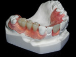 Figure 2 A full acrylic, rubberized, soft partial denture.