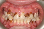 Case 2, pretreatment retracted occlusion (after debridement) to better assess the extent of the caries.