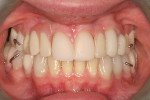 Case 2, posttreatment retracted occlusion with improved midline diastema.