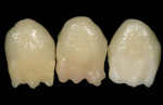 Figure 10  Mamelon was applied with GC Flo dentin 93, 92, and 91 (left to right) to the sample crowns.