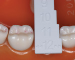 Figure 2  Use of a sizing gage for posterior teeth (Image courtesy 3M ESPE.)