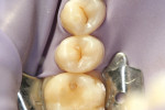 Figure 3  Tooth No. 13 was isolated with a rubber dam.