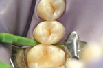 Figure 4  The distal aspect of tooth No. 13 was wedged.