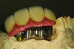 Fig 16. The maxillary hybrid bar.