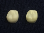 Fig 1. An example of discolored teeth.
