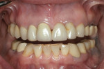 Fig 5. The mandibular incisors from 2008 showed minimal change in attrition.