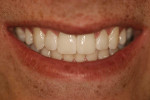 Fig 9. Close-up view of patient's smile after final adjustments.
