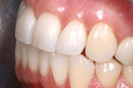 Figure 2  Preoperative left lateral retracted view of the patient's teeth, revealing discoloration and deeper hue.
