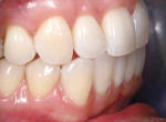 Figure 3  Preoperative right lateral retracted view of the patient's teeth, revealing similar discoloration on this side.