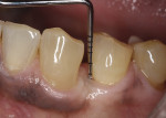 Fig 12. Follow-up at 15 months after surgical removal of cyst and bone graft placement. Note the gingival health of the treated area along with shallow probing depths.