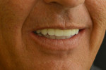 Fig 12. Post-treatment smile at 1-year follow-up.