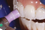 Figure 6  Before the bleaching procedure, the teeth were carefully cleaned with pumice to remove extrinsic stains.