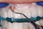 Figure 12  The gingival barrier (OpalDam) was lifted off and removed using an explorer.