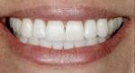Figure 17  Final postwhitening treatment view of the patient's natural smile.