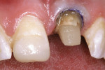 Figure 12  Ten weeks after crown lengthening, the crown preparation was completed and demonstrated the 2-mm ferrule necessary to support the final all-ceramic crown.