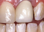 Figure 13  The completed all-ceramic crown and direct composite bonding of the adjacent central incisor.