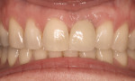 Figure 7  Two years after the restoration was completed, the tissue color and contour match the adjacent teeth. (Restoration by Dr. Michael Vitale, Bronxville, NY.)