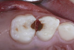 Class II caries lesions of primary molars in a 5-year-old.