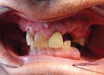 The patient presented with a severely broken down dentition as well as significant bite collapse, with a chief complaint of fractured teeth to the point that his existing maxillary partial would not stay in place and it was extremely difficult to eat.