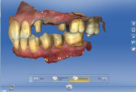 CEREC Biogeneric Individual software compiled three scans to mimic the patient's bite in maximum intercuspation.
