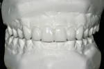 Figure 4  Approximately 80% of the entire case is completed before tooth preparation.