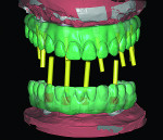 Fig 23. Final adjustments are scanned for the definitive zirconia framework.