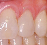 Figure 2  Mesial diastema closed using N'Durance composite resin with a totaletch adhesive resin technique