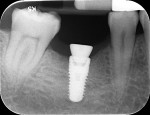 Fig 44. Periapical view, implant and healing abutment, Visit 3, Case 5.