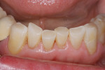 Figure 6  Incisal wear restored with N'Durance.