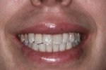 Fig. 6 Smile at 2 weeks shows elimination of gingival display.