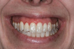 Fig. 1 Preoperative smile showing excessive gingival display.