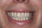 Fig. 8 View at 6 months shows elimination of gingival display and a beautiful smile.