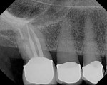 Fig. 7 Periapical radiograph of tooth No. 2 shows extensive caries on the distal aspect under the crown margin.