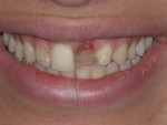 Fig. 1 Inconsistent shades and shapes of teeth and soft tissues surrounding the missing tooth contributed to an unharmonious smile for this patient.
