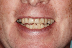 Fig 6. Uneven smile line of both upper and lower dentitions during unrestricted smile.